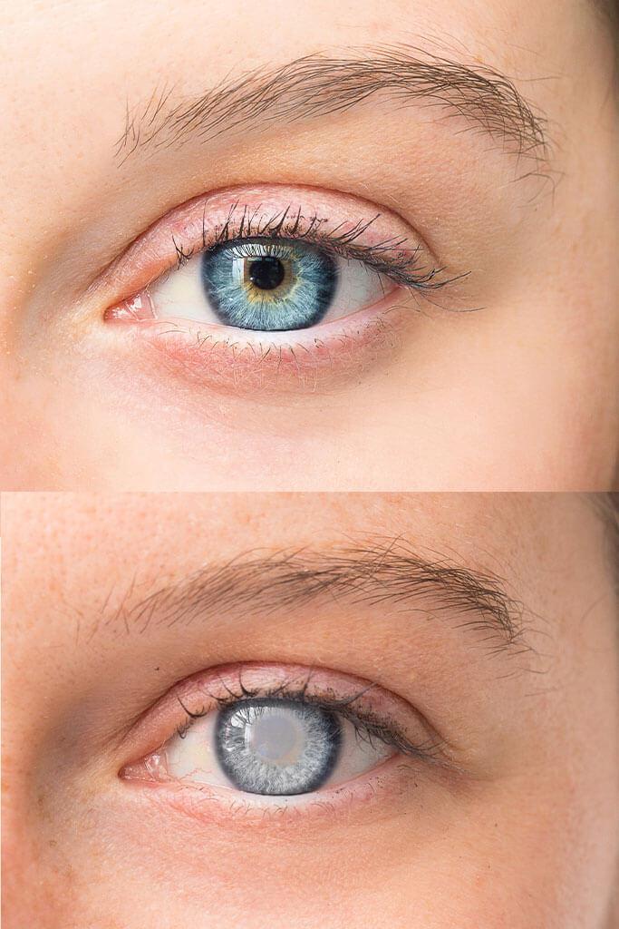 Glaukom - Vorsicht vor Erblindung!
