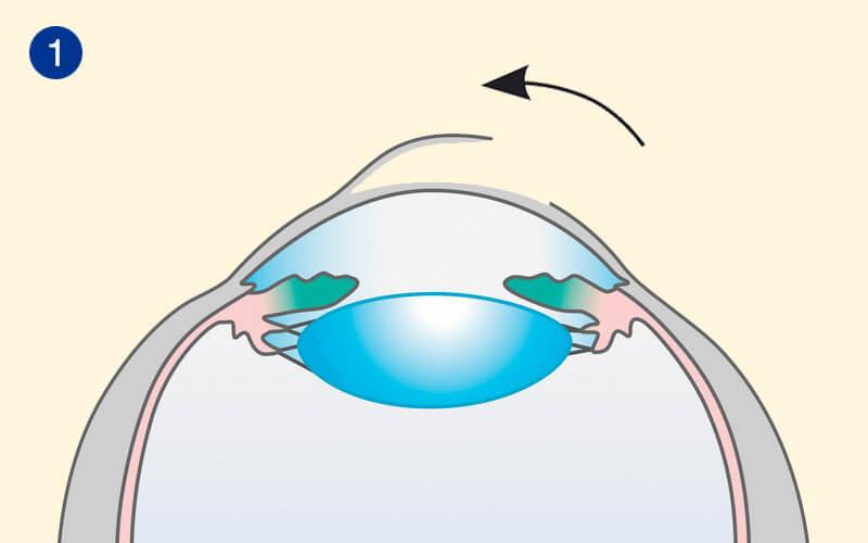 Ablauf der Femto-LASIK in unserem Augenlaserzentrum Schritt 1