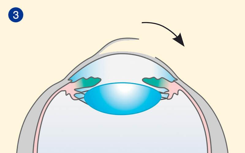 Ablauf der Femto-LASIK in unserem Augenlaserzentrum Schritt 3