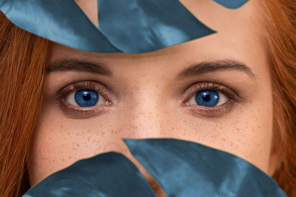 Tränensäcke Ursachen