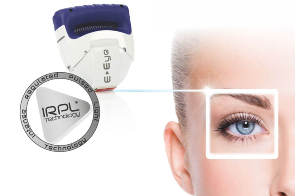 Sicca-Syndrom-Behandlung mit E-Eye