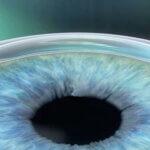 Das Augenlasern ist eine beliebte Alternative zur Brille, die schon vielen Menschen zu mehr Lebensqualität verholfen hat.