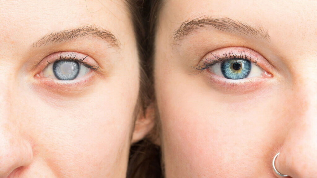 Vergleich: Auge mit und ohne Grauem Star