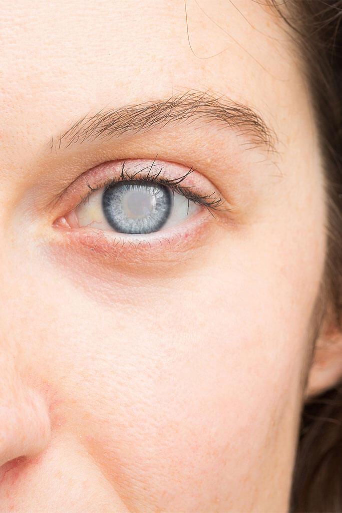 Was sind die Ursachen für grünen Star Glaukom?
