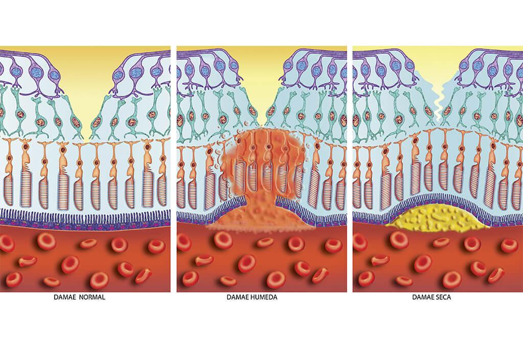 Unterschiede: Die trockene Makuladegeneration