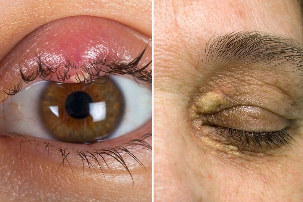 Wie entstehen Hagelkörner, Lidtumore und Xanthelasmen?