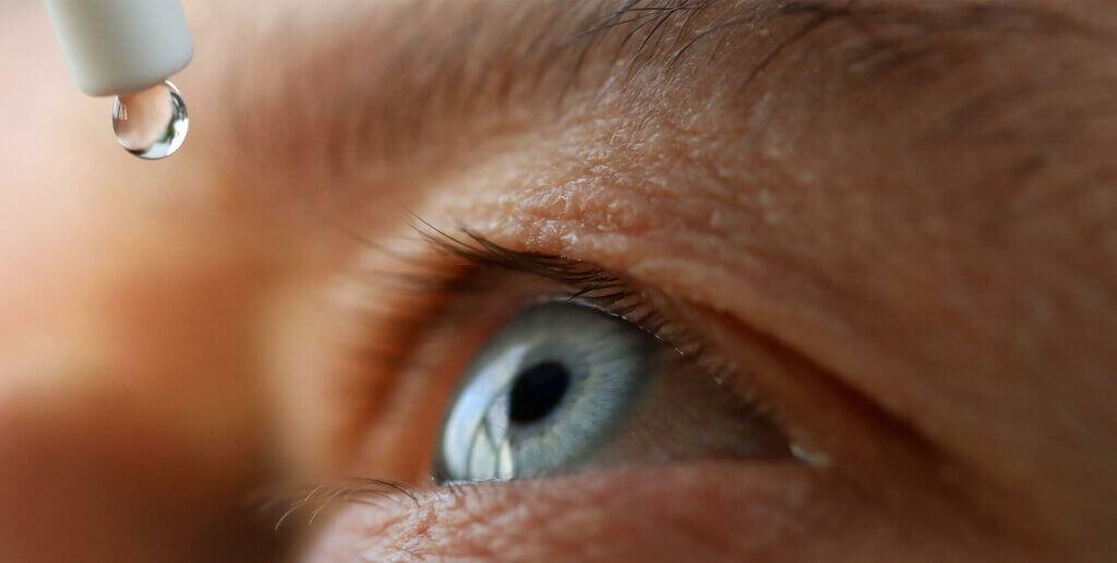 Grauer Star Op: danach sind antibiotische Augentropfen wichtig