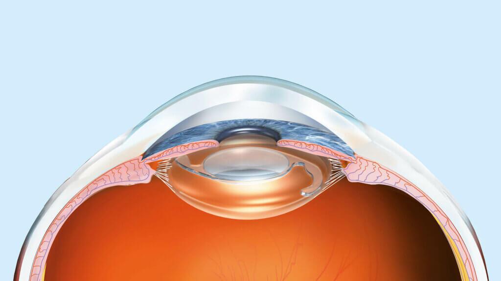Kunstlinse für eine bessere Sicht bei Kurzsichtigkeit- ICL-Linsen