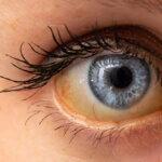 Gelbe Augen - Ursachen, Bedeutung & Behandlung