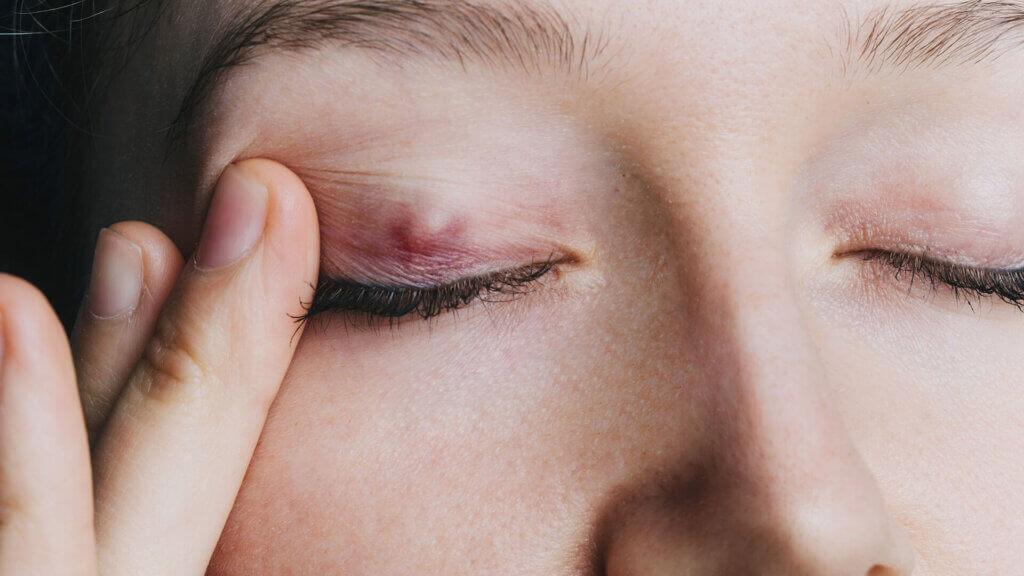 Gerstenkorn Symptome - wie erkenne ich die Entzündung