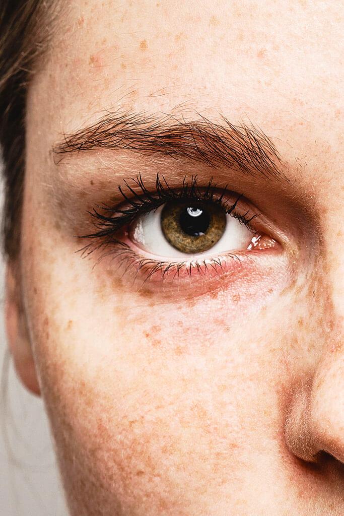 Augen lasern Relex Smile & Femto Lasik