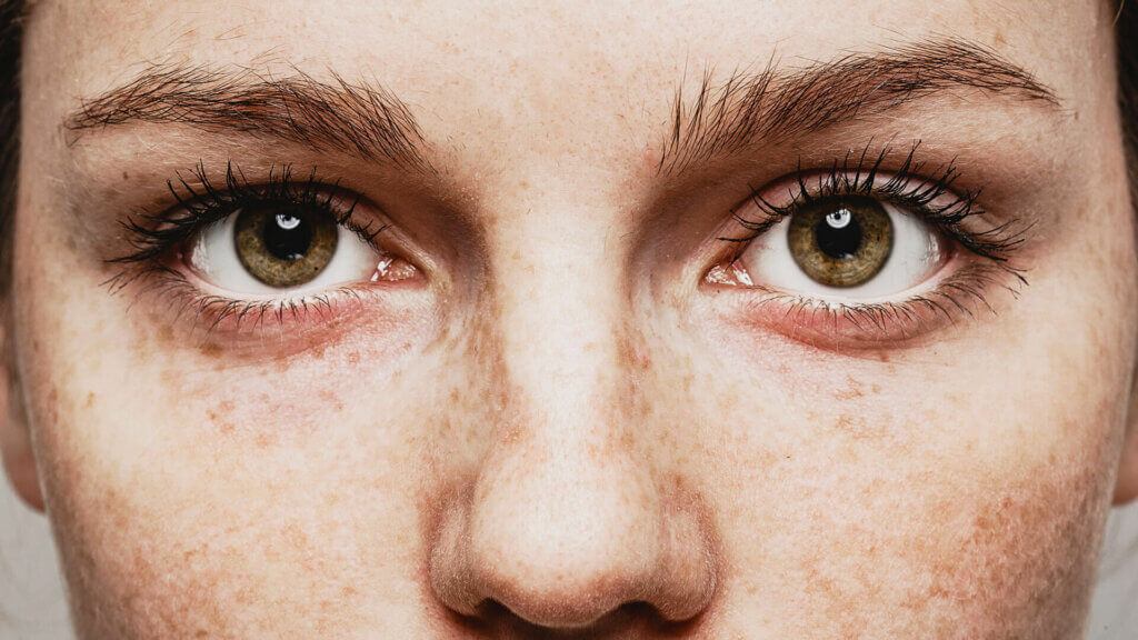 Risiken beim Augenlasern!