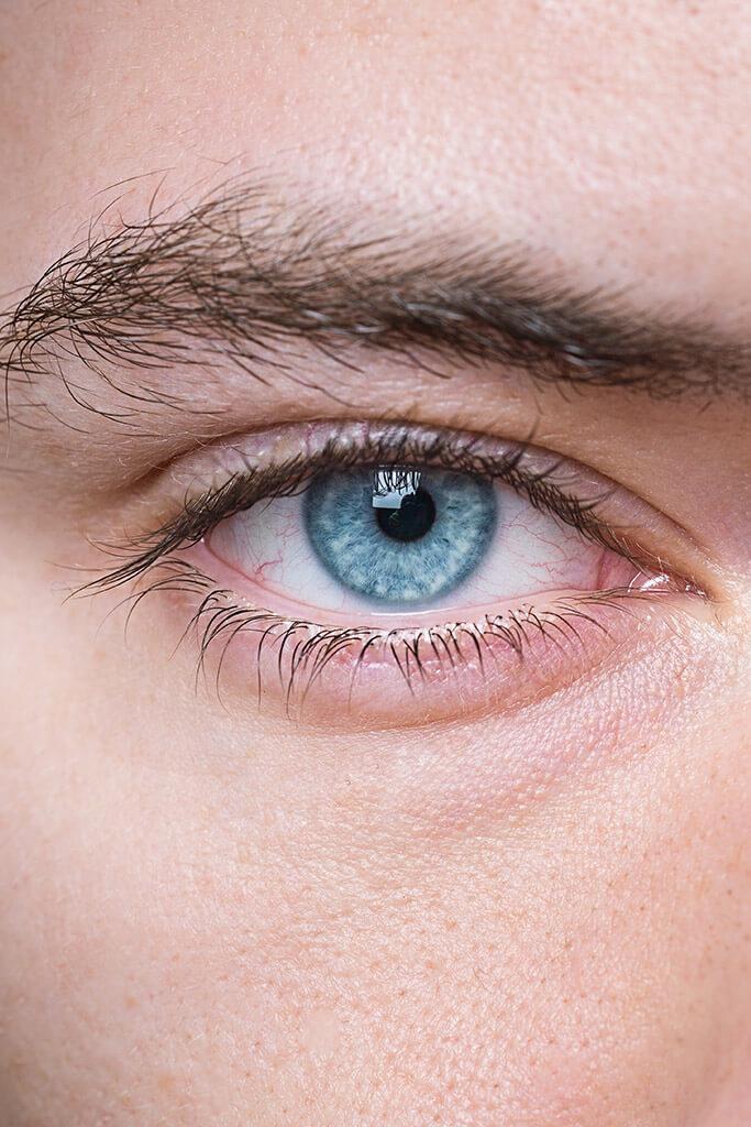 Femto-Lasik - Augen lasern