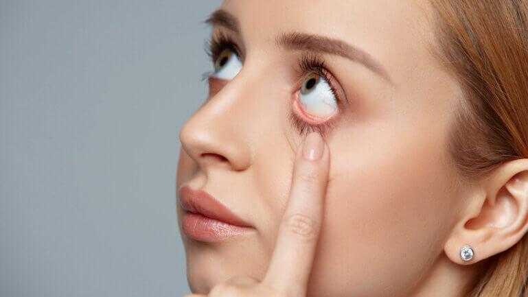 Fremdkörper im Auge - Ratgeber